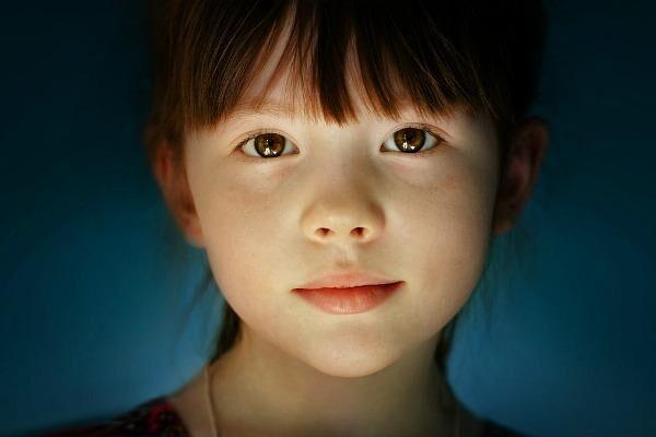 Глаукома у девочки