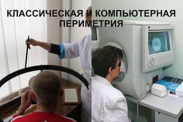 Периметрия