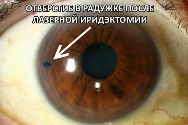Глаз после лазерной иридэктомии