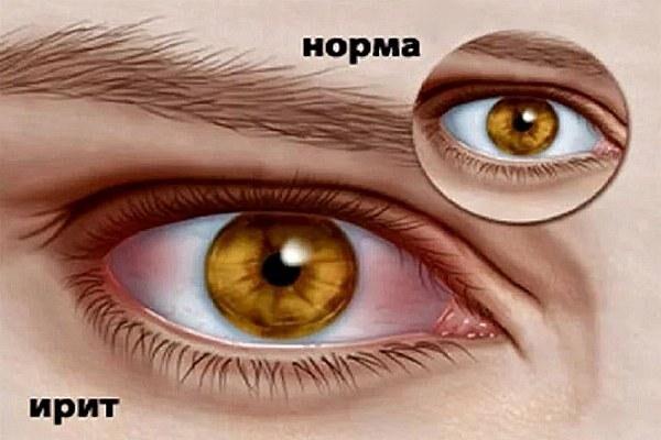 Нормальный глаз и с болезнью ирит