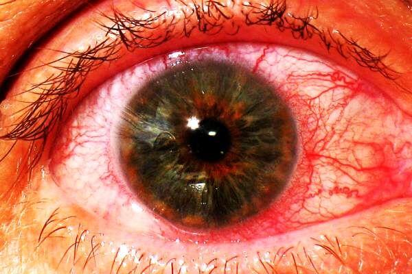 Глазное заболевание ирит