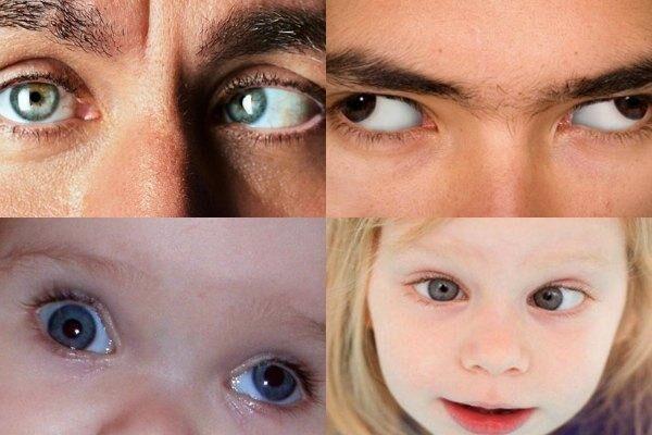 Косоглазие у взрослых и детей