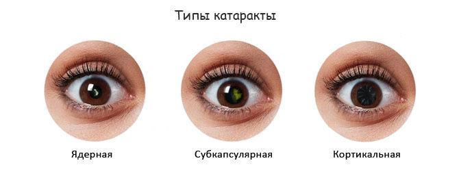 Ядерная, субкапсулярная и кортикальная катаракты