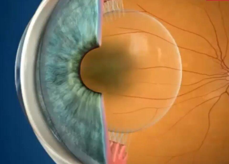 Помутнение хрусталика при катаракте
