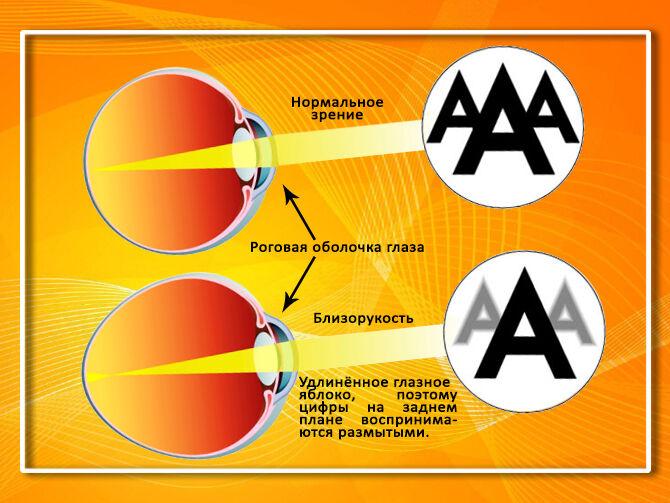 Зрение при близорукости минус 2