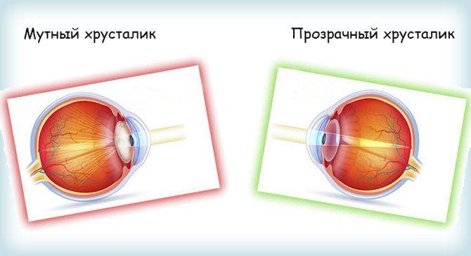 Мутный и прозрачный хрусталик глаза