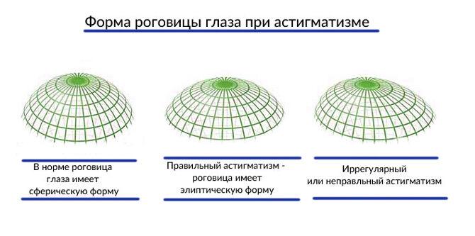 Форма роговицы глаза при астигматизме