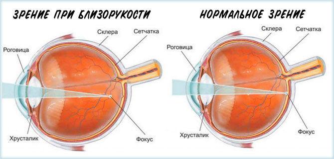 Зрение при близорукости и в норме