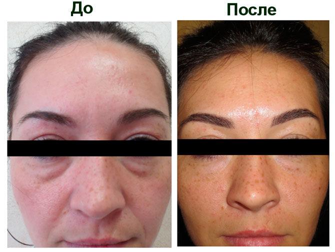Фото до и после применения препарата Дермахил