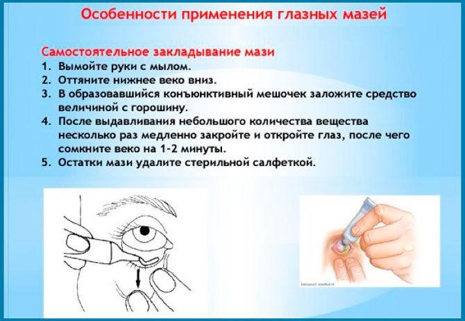 Особенности применения глазных мазей