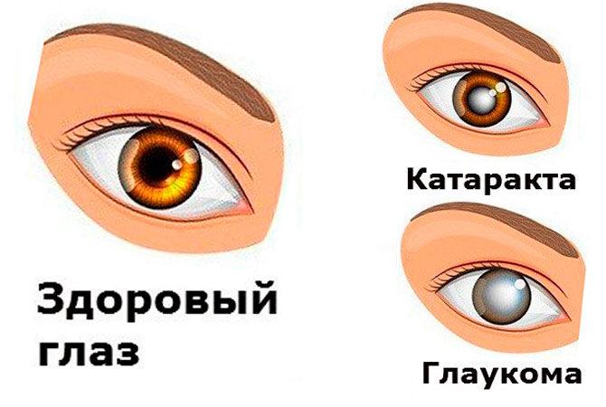 Глаукома и катаракта