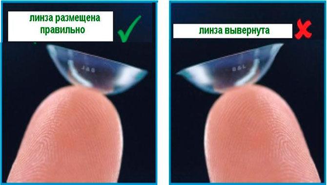 Вывернутая контактная линза