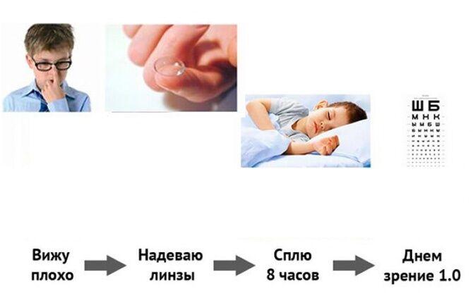 Как действуют ночные линзы