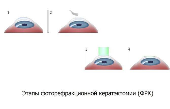Этапы ФРК