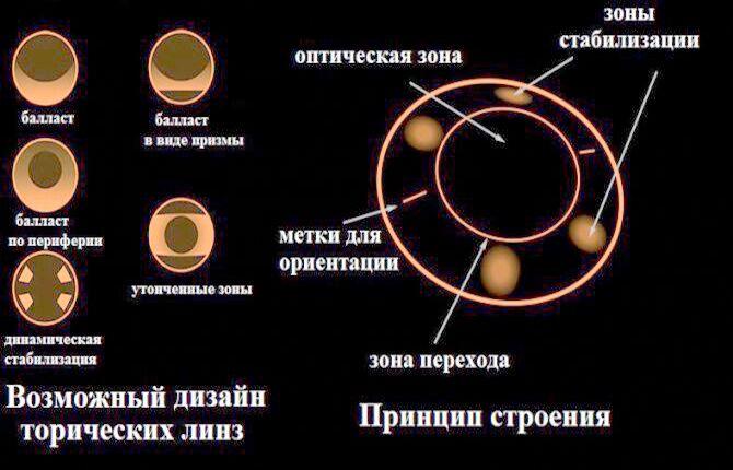 Балласт при изготовлении астигматических линз