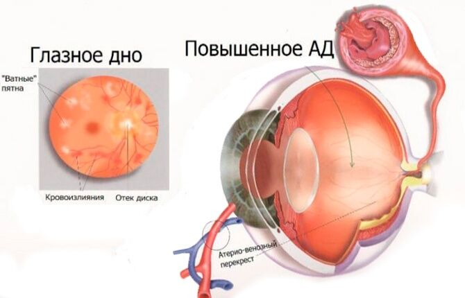 Глаз и повышенное АД