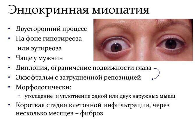 Эндокринная миопатия