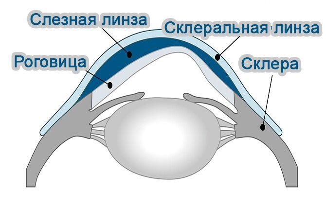 Склеральная линза