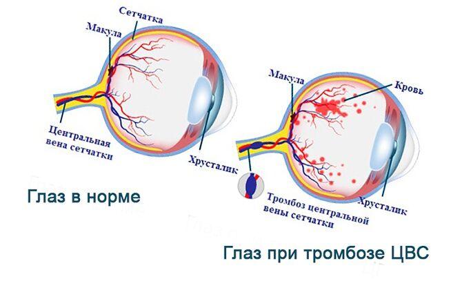 Глаз при тромбозе ЦВС