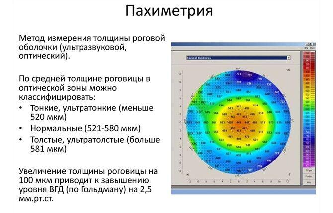 Пахиметрия глаз