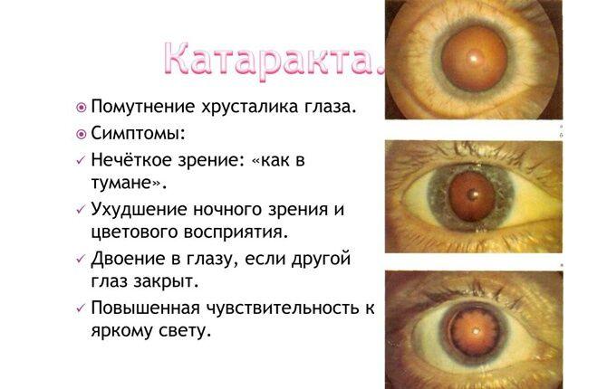 Что такое катаракта