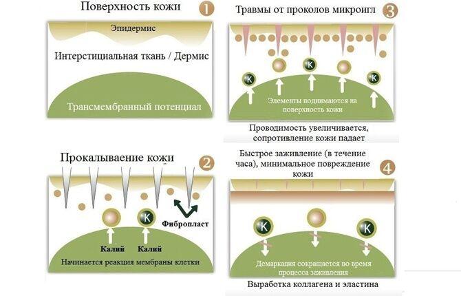 Принцип действия фракционной мезотерапии