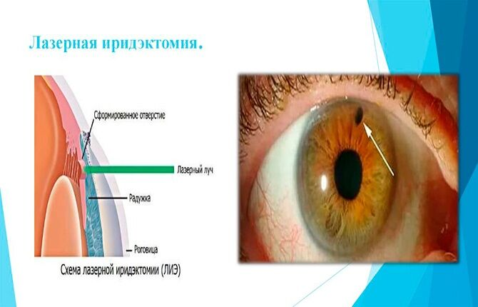 Лазерная иридэктомия глаза