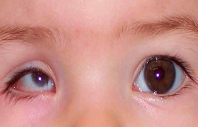 Микрофтальм глаз