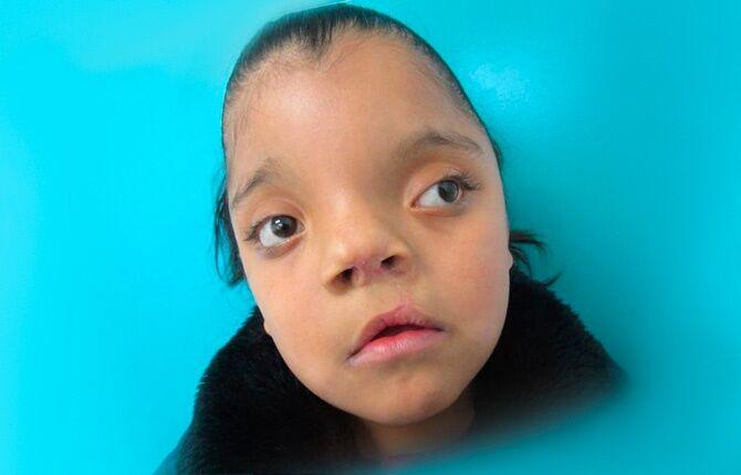 Гипертелоризм глаз проявление