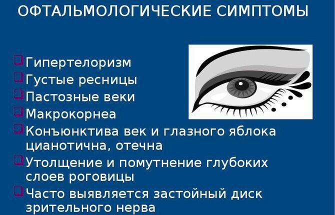 Симптомы гипертелоризма