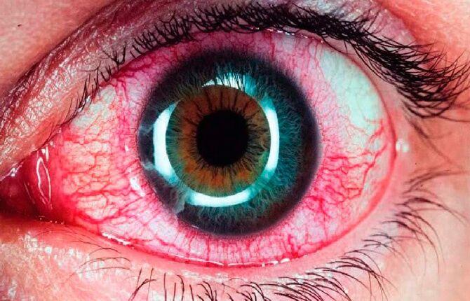 Инфицированный глаз лечение