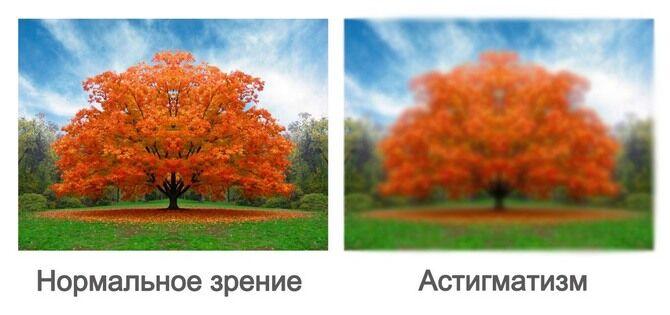 Зрение в норме и с астигматизмом