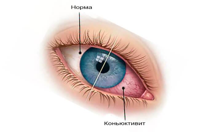 Как выглядит конъюнктивит и нормальный глаз