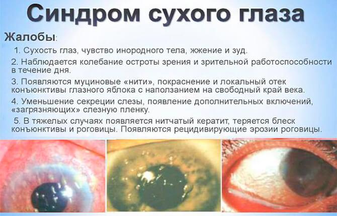 Признаки синдрома сухого глаза